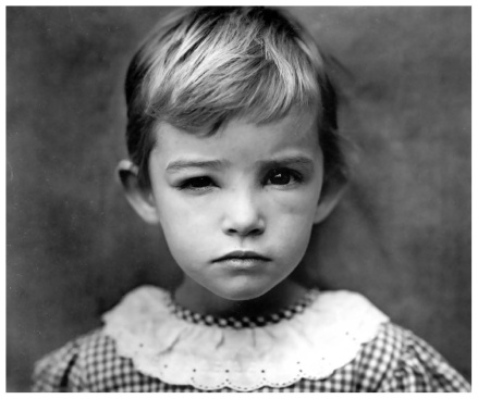 e28098damaged-child_-photo-sally-mann-1984